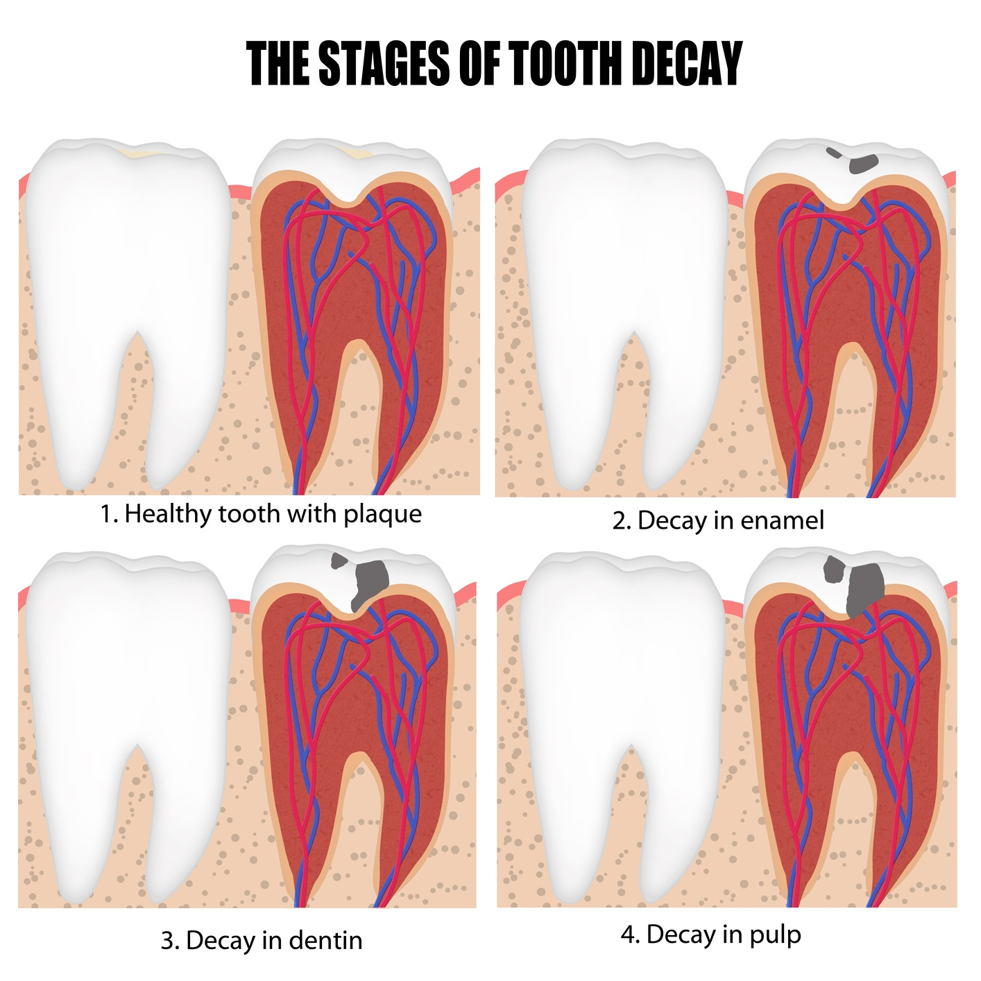 Sharoe green dental practice news can oil pulling and other diagram of tooth with caries stages ccuart Gallery